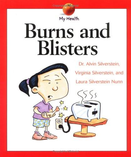 Burns and Blisters (My Health) by Alvin Silverstein